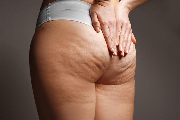Cellulite su glutei e gambe