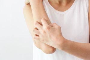 donna si gratta per qualche tipo di dermatite