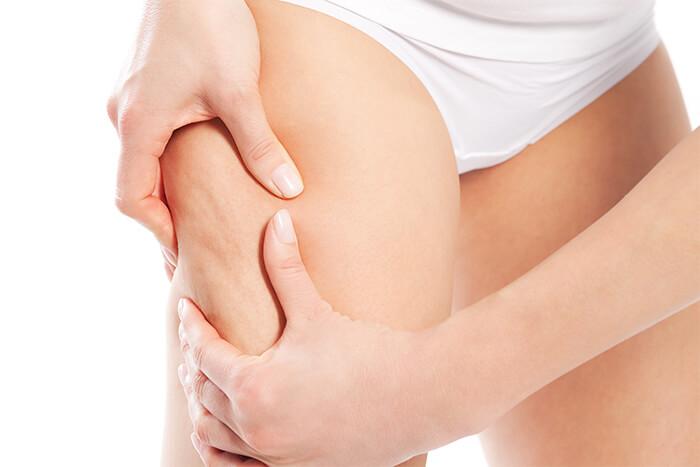 come contrastare la cellulite