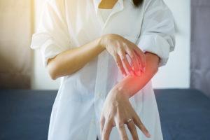 prurito e dermatite da stress